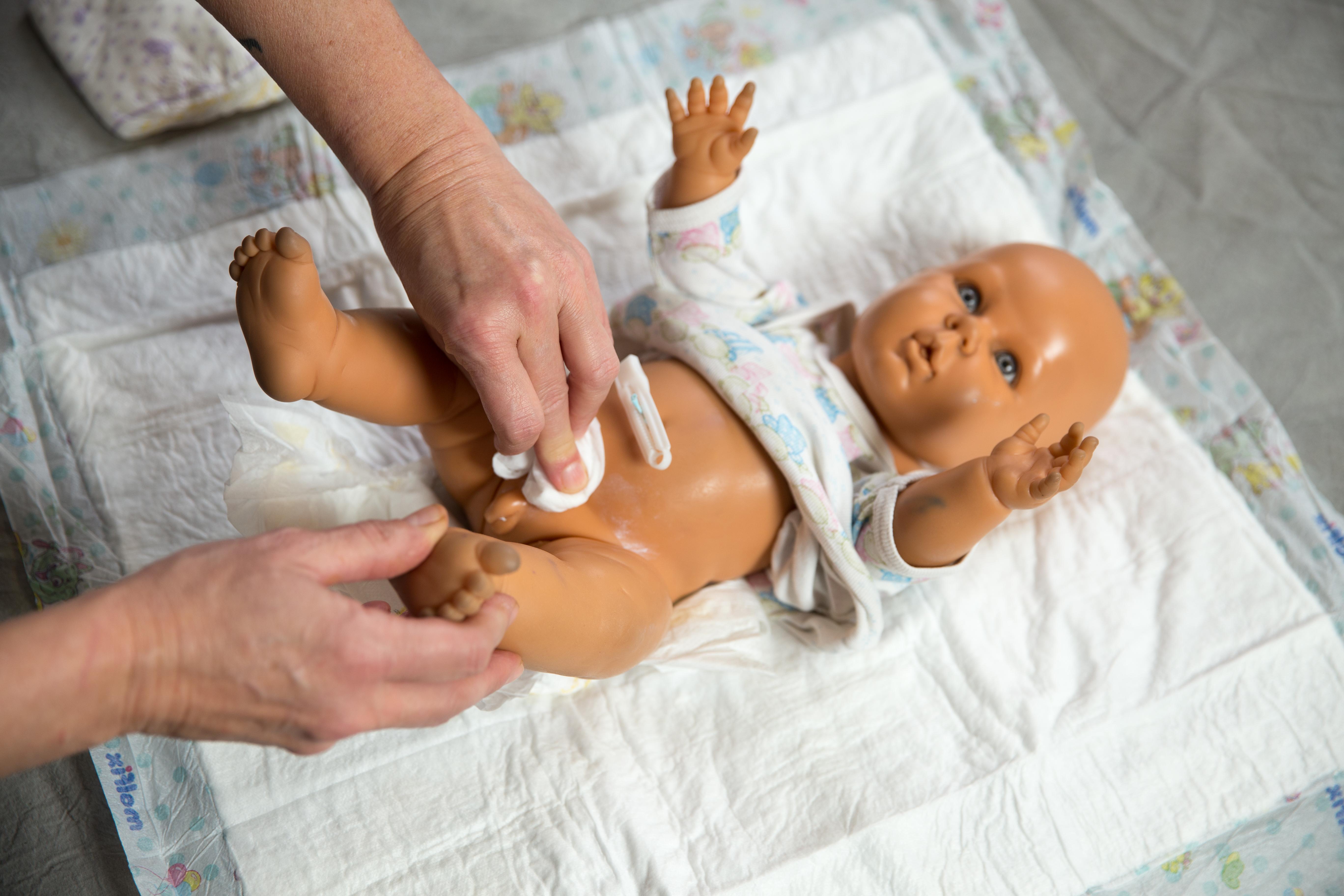Yeni doğan bebeğin göbek bağı acır mı